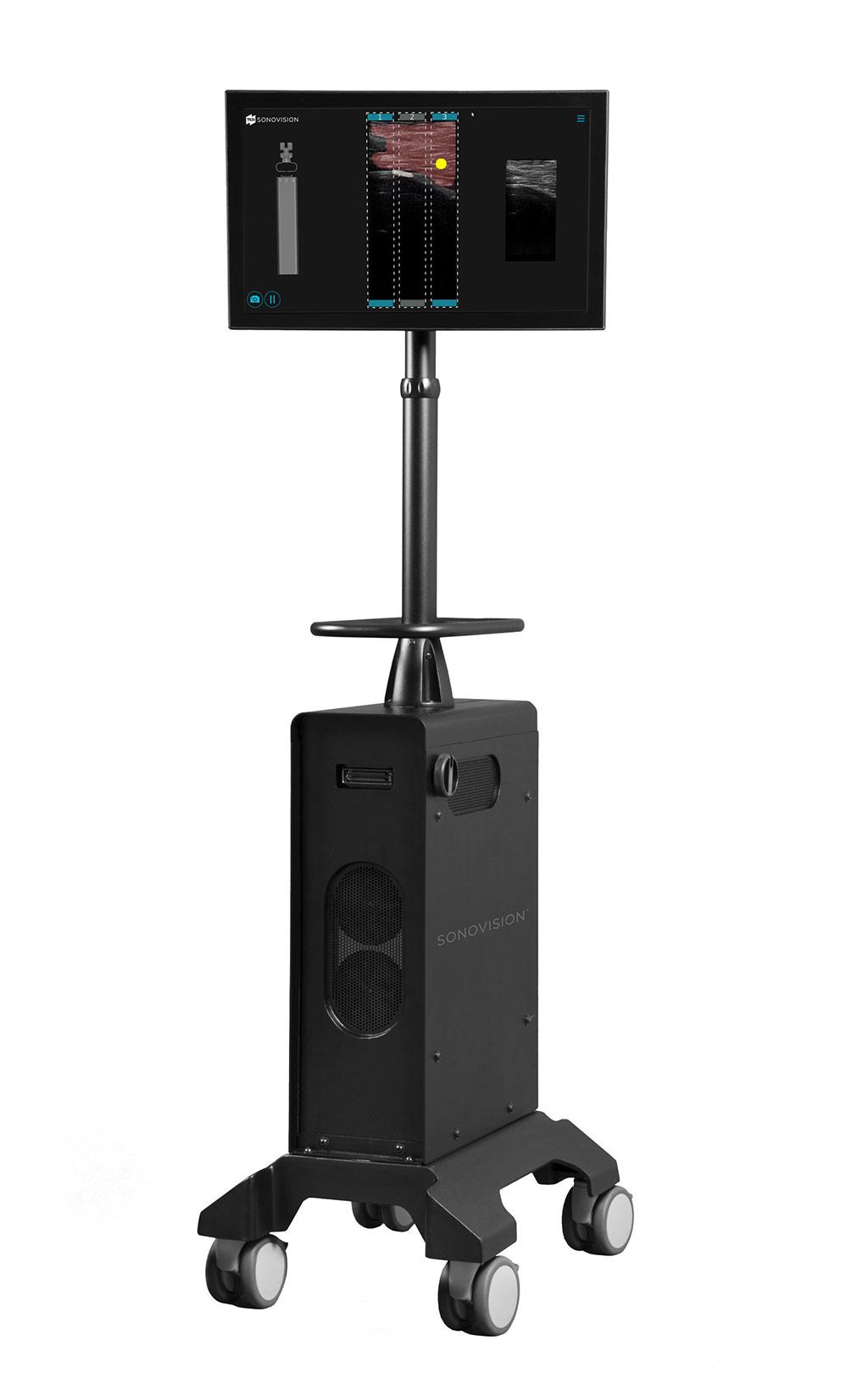 Image: The SonoVision ultrasound imaging system (Photo courtesy of TDi).