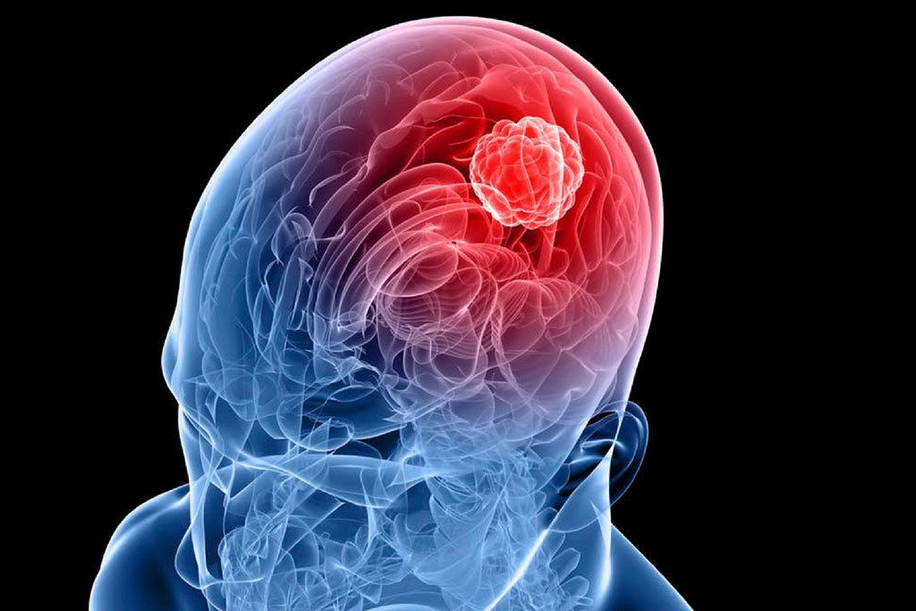 Image: Sonodynamic therapy may offer a new option for treating glioma (Photo courtesy of Shutterstock)