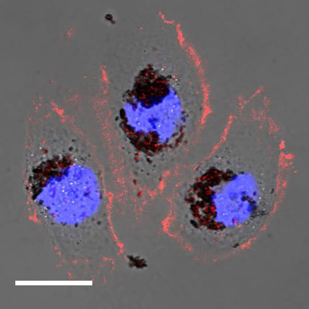 Image: Human cells treated with Selenomelanin nanoparticles (Photo courtesy of NU)