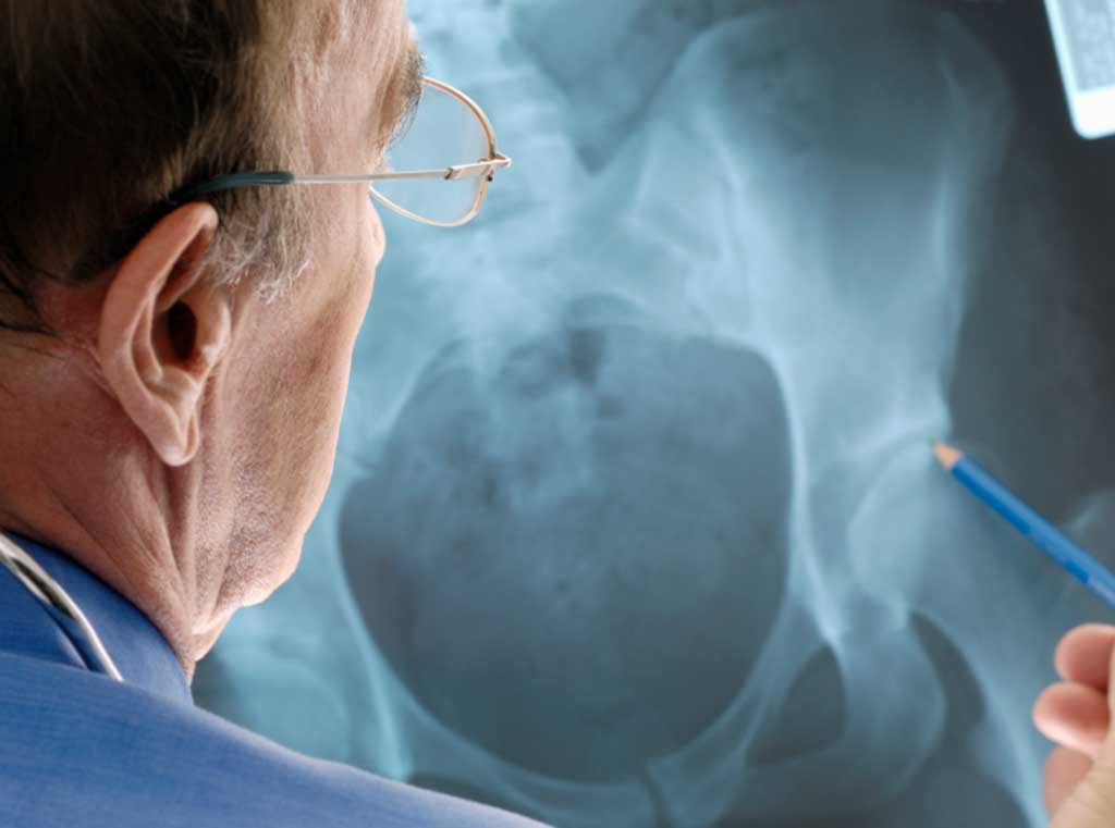 A deep learning algorithm can help radiologists detect hip fracture (Photo courtesy of Getty Images)