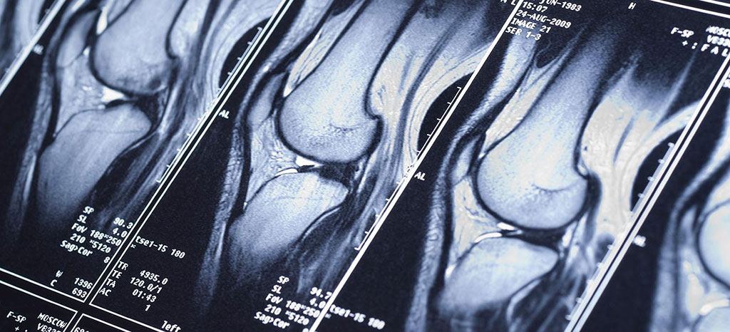 Image: AI can help speed up and improve MRI scan quality (Photo courtesy of NYU Langone)