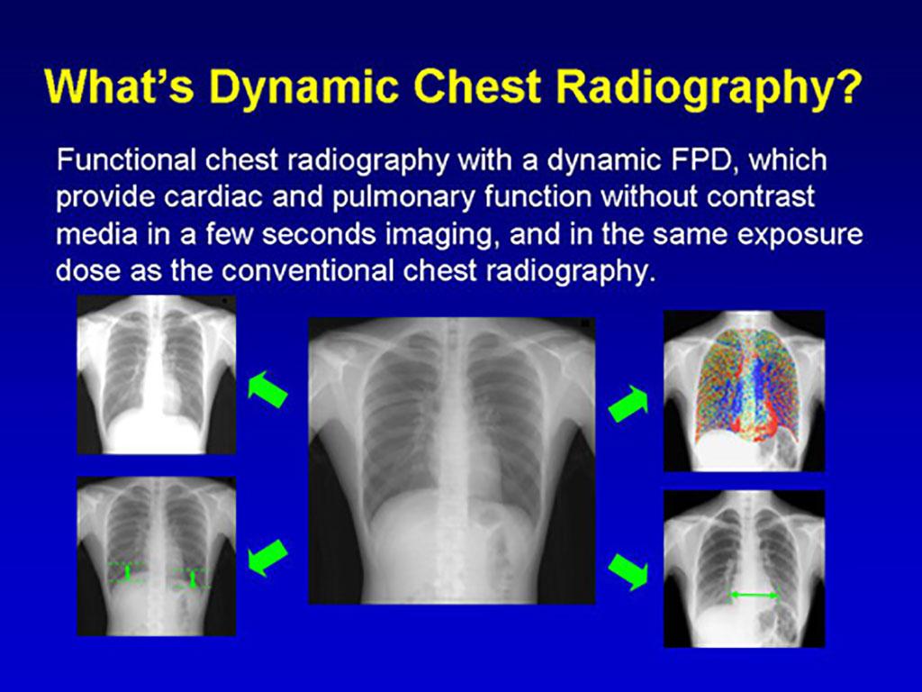 Image: Examples of DCR images (Photo courtesy of Rie Tanaka/ Kanazawa University)