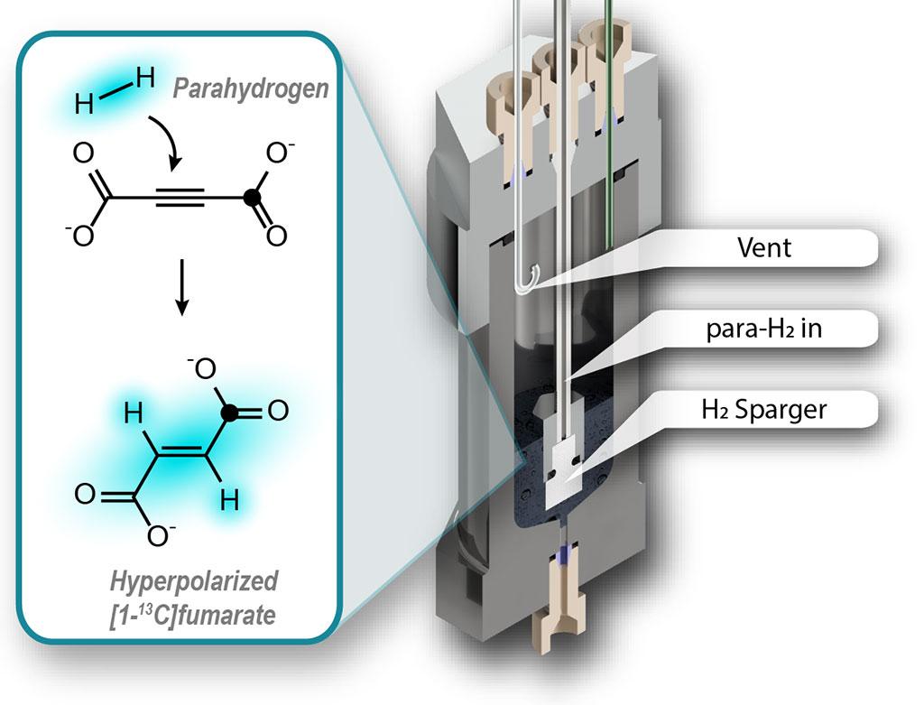 Image: Hyperpolarization of fumarate for use as a biosensor (Photo courtesy of John Blanchard, James Eills)