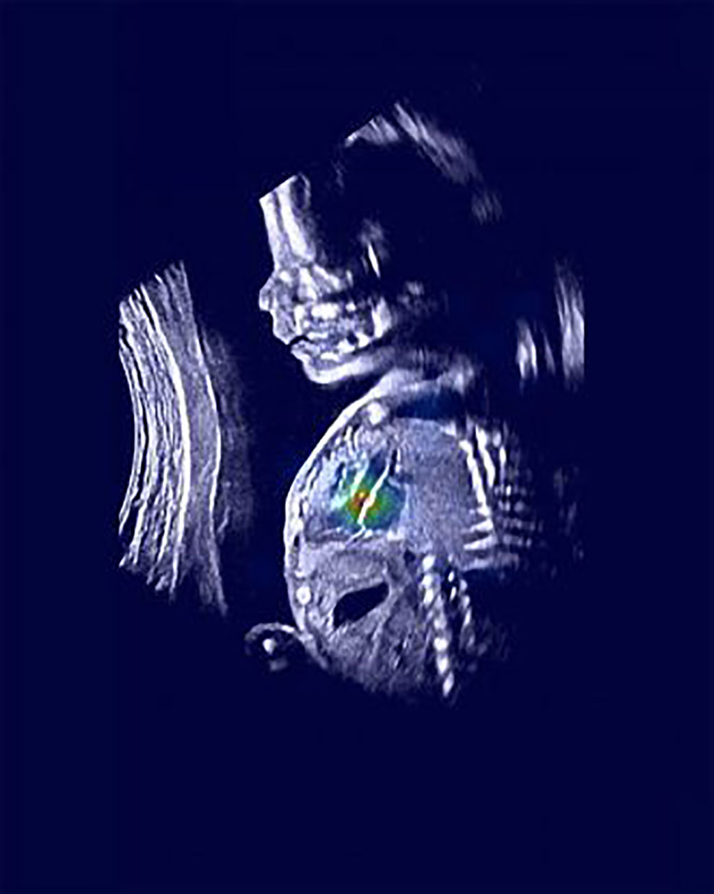 Image: An ultrasound image shows a normal fetus with relevant heart structures precisely highlighted (Photo courtesy of Rima Arnaout)
