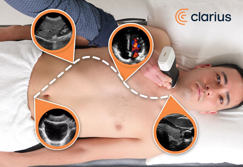 Image: Clarius high-definition ultrasound scanners now enable clinicians to quickly examine the abdomen, heart, lungs, bladder, and other superficial structures (Photo courtesy of Clarius Mobile Health)