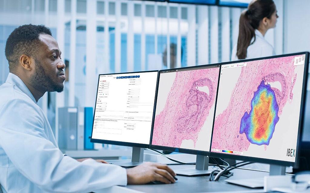 Image: The Galen Gastric AI-based pathology system (Photo courtesy of Ibex)