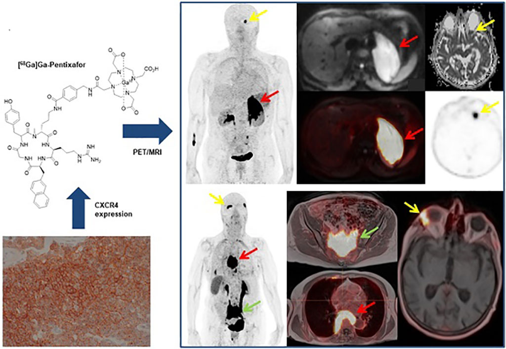 Image: MALT lymphomas express the chemokine receptor CXCR4 (Photo courtesy of MedUni)