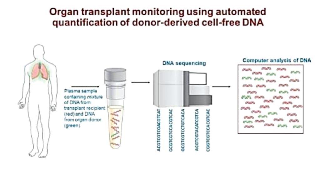 Анализ крови для мониторинга трансплантации органов с использованием секвенирования ДНК (фото любезно предоставлено Национальным институтом болезней сердца, легких и крови).