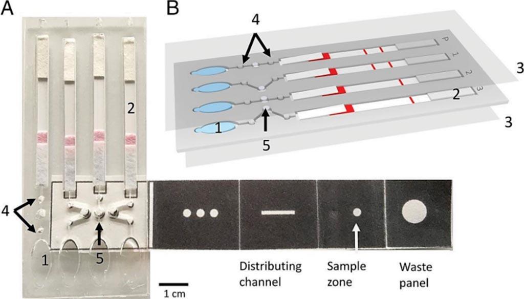 Микрожидкостное устройство на основе бумаги позволяет обнаруживать малярию в крови на основе петлевой изотермической амплификации (фото любезно предоставлено Университетом Глазго).