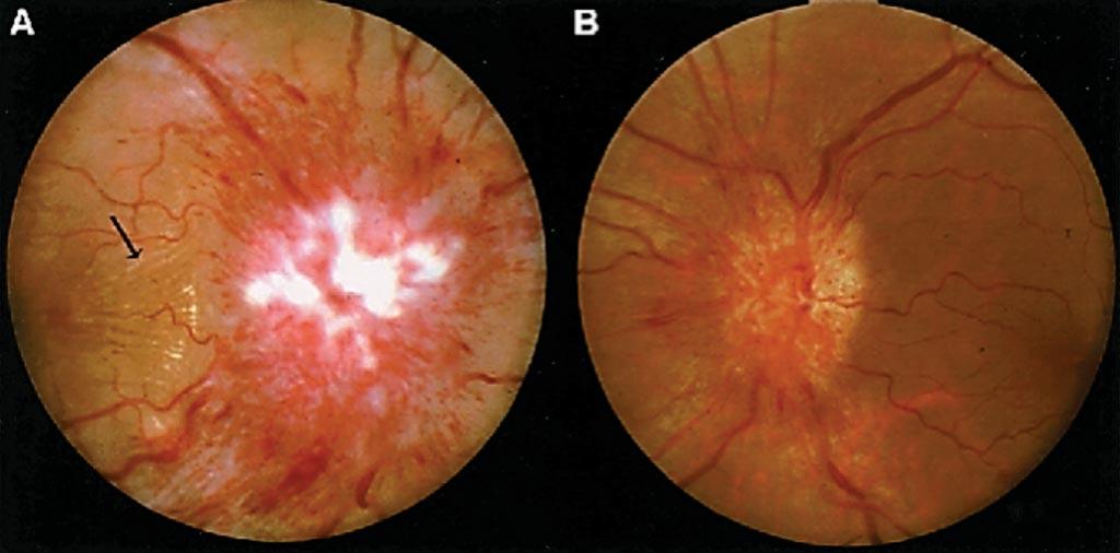 Фотография глазного дна женщины с идиопатической внутричерепной гипертензией (ИВГ), демонстрирующая выраженную папиллему в правом глазу (A) и умеренную папиллему в левом глазу (B). Фото любезно предоставлено доктором медицинских наук Девином К. Биндером (Devin K. Binder) и коллегами.