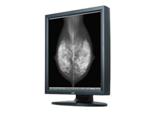 Монитор визуализации  молочной железы
