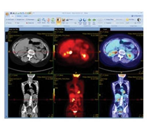 Программа просмотра изображений позитронно-эмиссионной и компьютерной томографии (ПЭТ/КТ)