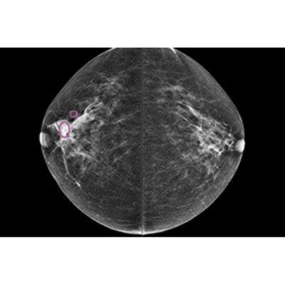 Программное обеспечение для выявления рака молочной железы