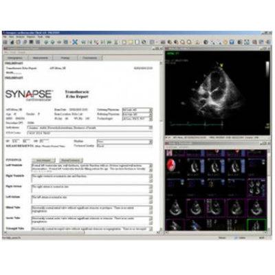 Информационная система для обработки данных сердечно-сосудистых заболеваний
