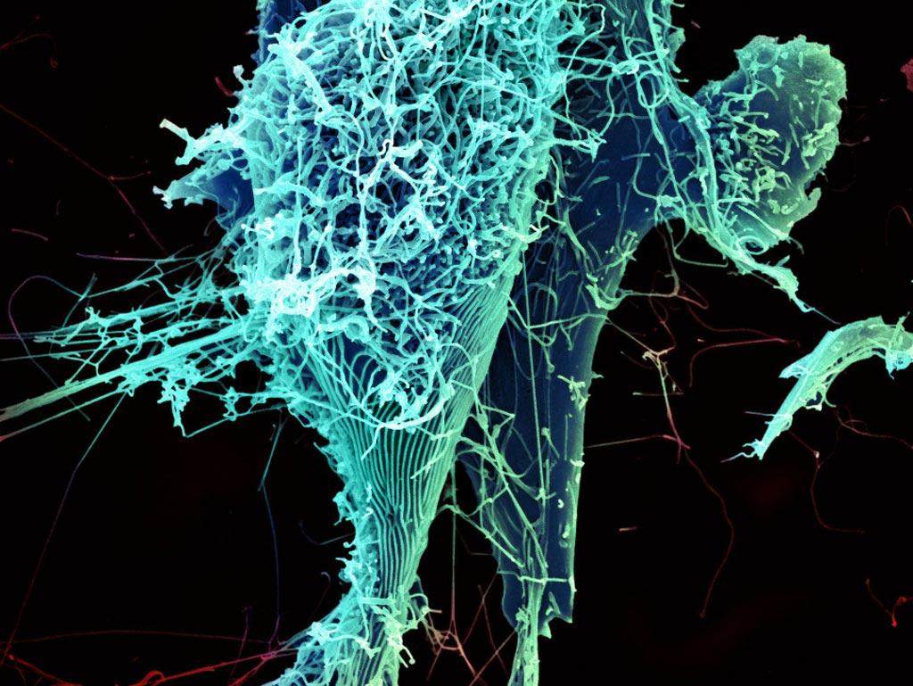 Клетка, инфицированная вирусом Эбола (фото любезно предоставлено Национальным институтом аллергии и инфекционных заболеваний, Национальными институтами здравоохранения).