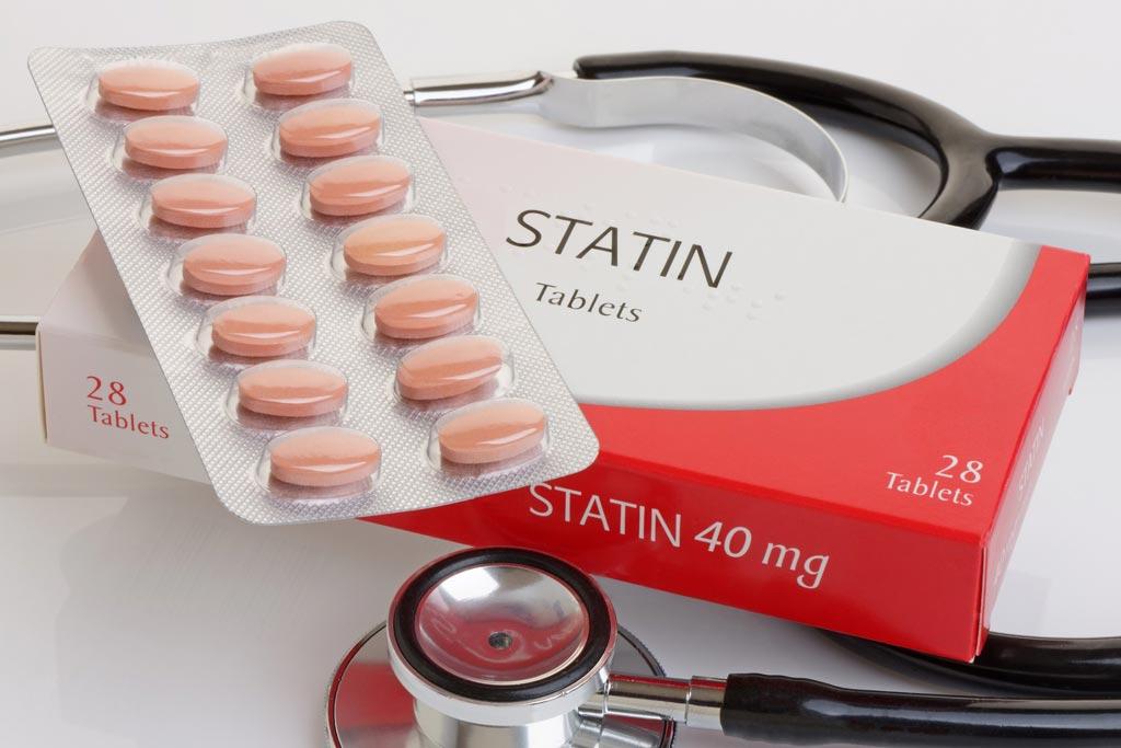 Новое исследование показывает, что прекращение приема статинов после инсульта повышает риск его повторения (фото предоставлено Getty Images).