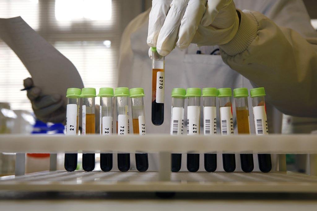 Новое исследование утверждает, что слишком большое количество пройденных тестов может нанести больше вреда, чем оказаться полезным (фото любезно предоставлено Medicimage).