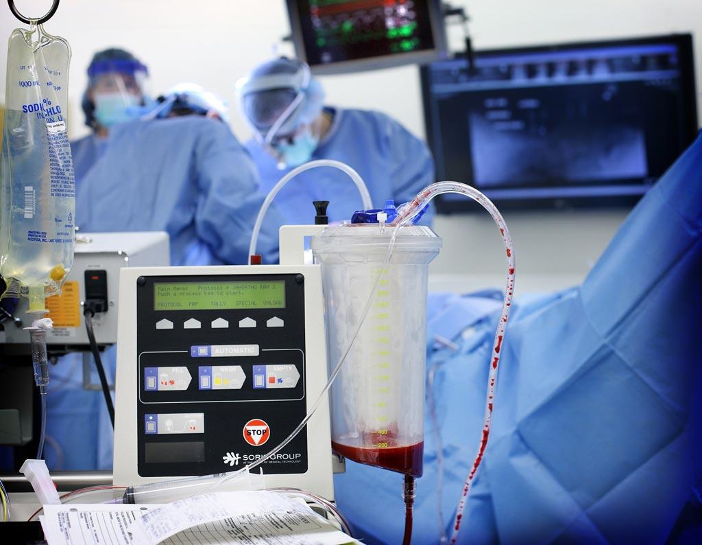 Новое исследование утверждает, что программа по сокращению практики избыточных переливаний крови улучшила уход за пациентами (фото любезно предоставлено Китом Уэллером (Keith Weller) / Университет Джонса Хопкинса).