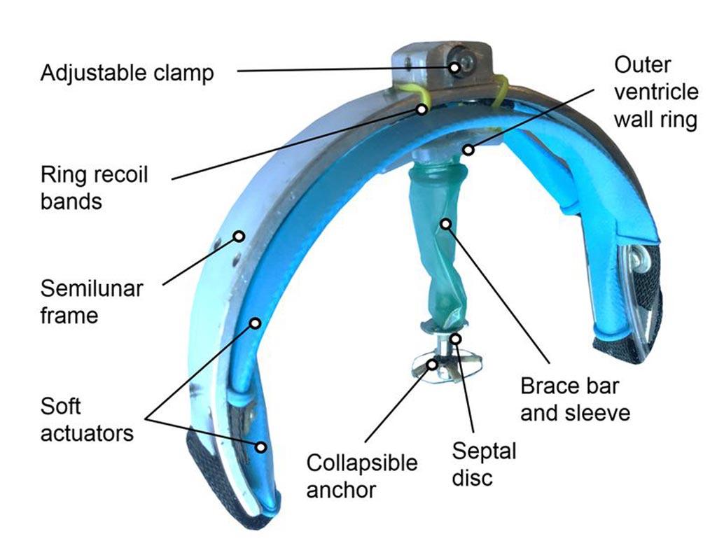 В новом исследовании предполагается, что мягкое роботизированное устройство сможет помочь при сердечной недостаточности (фото любезно предоставлено Бостонской детской больницей).