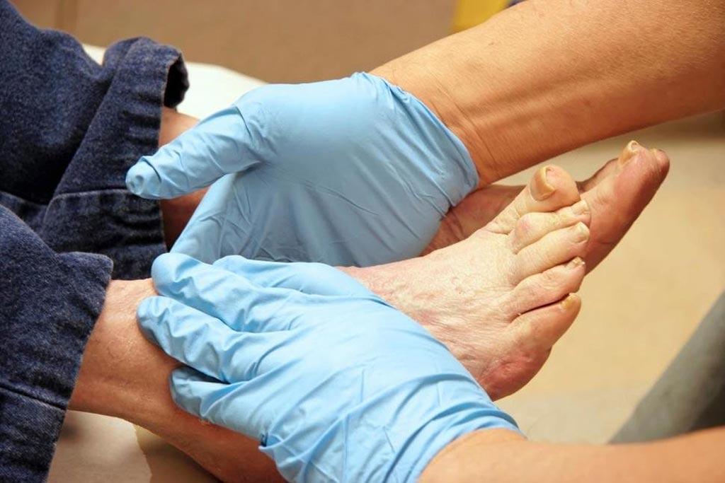 В новом исследовании рекомендуется обращаться к более эффективным методам лечения диабетических язв стопы, которые смогут препятствовать ампутации (фото любезно предоставлено Getty Images).
