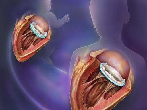 В новом исследовании описывается, как сплетенный трубчатый имплантат может синхронно видоизменяться с сердечным клапаном ребенка (фото любезно предоставлено Рэндалом Маккензи (Randal McKenzie)/ BCH).