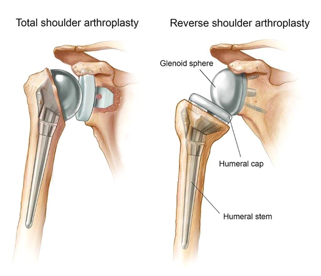 Согласно новому исследованию, обратная реверсивная тотальная артропластика плечевого сустава является подходящим решением для непоправимых разрывов мышц вращательной манжеты (фото любезно предоставлено клиникой Майо).
