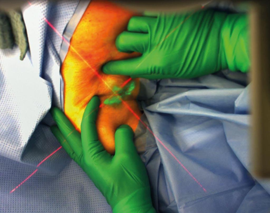 Исследователи разработали систему дополненной реальности 3D-ARILE, которая предоставляет врачам навигационное средство для удаления лимфатических узлов (фото любезно предоставлено Trivisio Prototyping).м