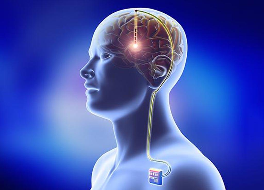 В новом исследовании предполагается, что глубокая стимуляция мозга может продлить жизнь пациентам с болезнью Паркинсона (фото любезно предоставлено Getty Images).