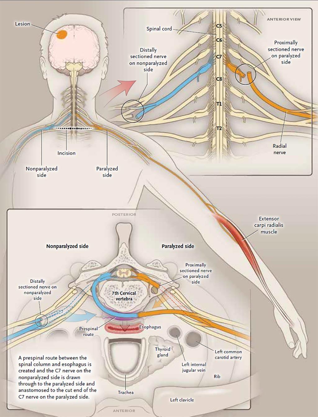 Процедура пересадки шейного нерва в позвонке С7 (фото любезно предоставлено М.К. Женг (M.X. Zheng)/Университет Фудань).
