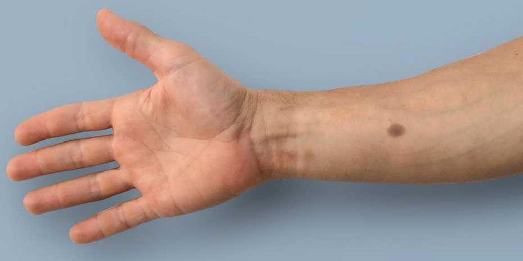 Новое исследование объясняет, как увеличение уровня кальция запускает процесс образования меланина, формируя родинку (фото любезно предоставлено Федеральной высшей технической школой Цюриха).