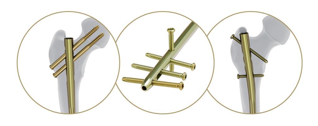 Новая интрамедуллярная система фиксации поможет достичь практически идеального костного сращения (фото предоставлено DePuy Synthes).