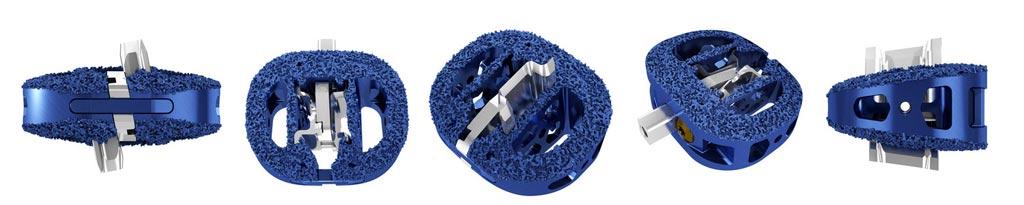Различные представления системы для выполнения переднего интеркорпорального спондилодеза ENZA-A Titanium (фото предоставлено Camber Spine).