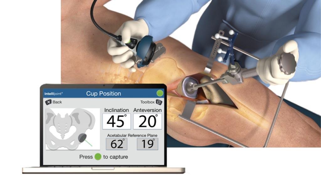 Инновационная система на основе мини-оптики помогает обеспечить точную процедуру тотального эндопротезирования тазобедренного сустава (фото любезно предоставлено intellijoint Surgical).