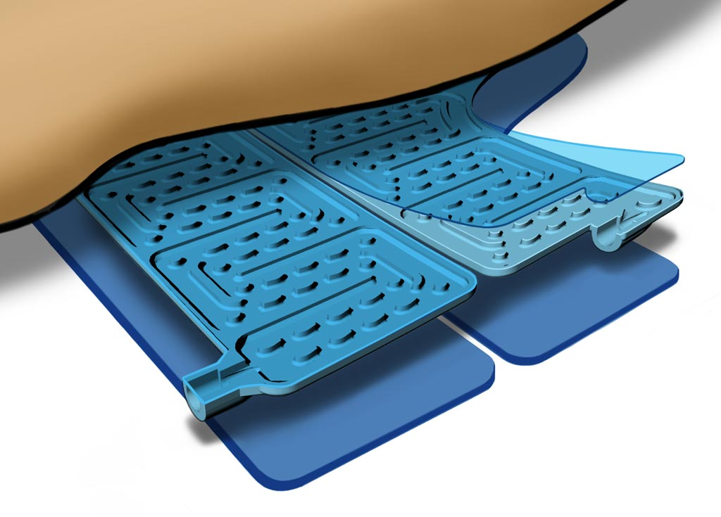 Внутреннее устройство теплообменной подушки IQool Warm System (фото предоставлено BrainCool).