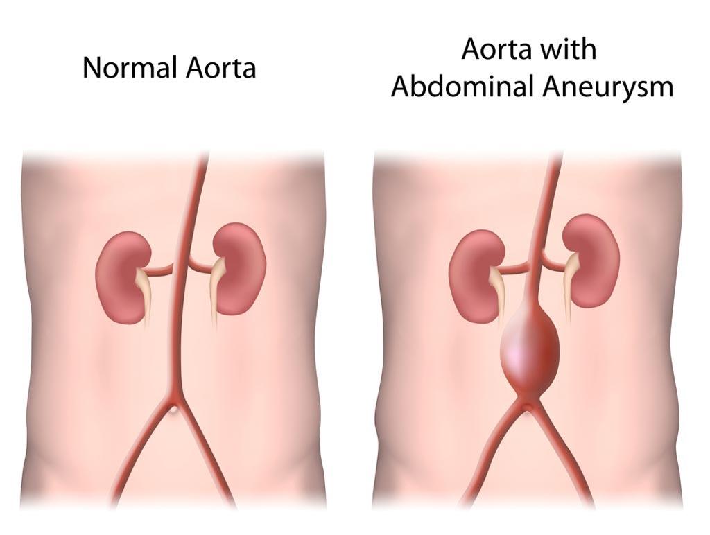 Риск от сканирования АБА выше, чем от самой аневризмы (фото любезно предоставлено Shutterstock).