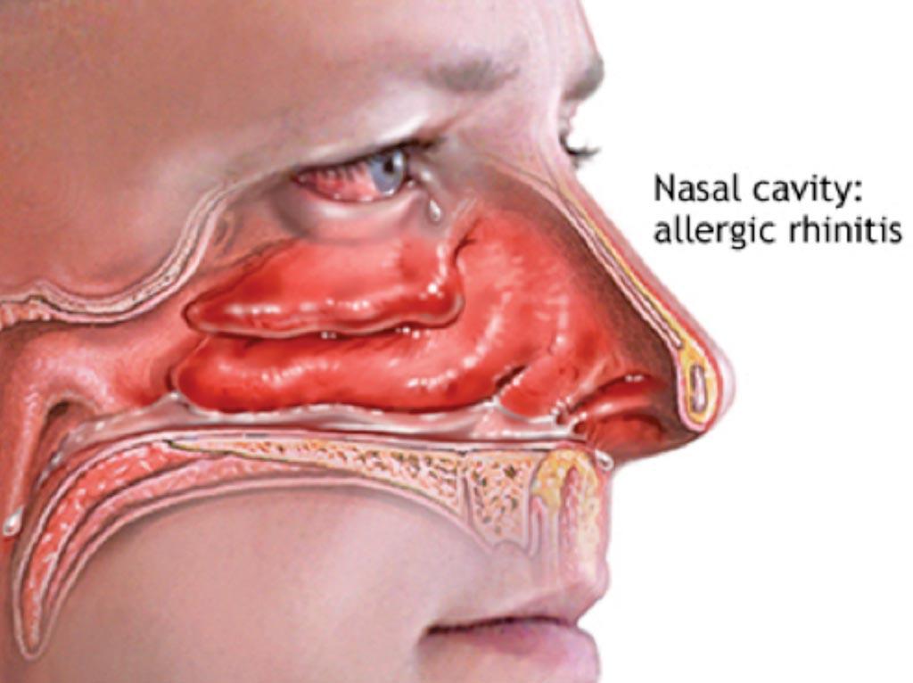 Аллергический ринит, или сенная лихорадка, - это разновидность воспаления слизистой оболочки носа, которое возникает, когда иммунная система слишком чувствительно реагирует на аллергены, находящиеся в воздухе (фото любезно предоставлено Национальными институтами здравоохранения США).