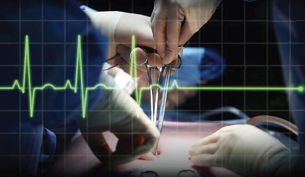 В новом исследовании утверждается, что сердечно-сосудистые события являются основной причиной смерти после некардиологической хирургии (фото любезно предоставлено Shutterstock).