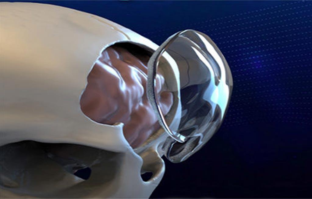 Прозрачный имплантат из полиметилметакрилата помогает восстановить череп после краниотомии (фото предоставлено Longeviti).