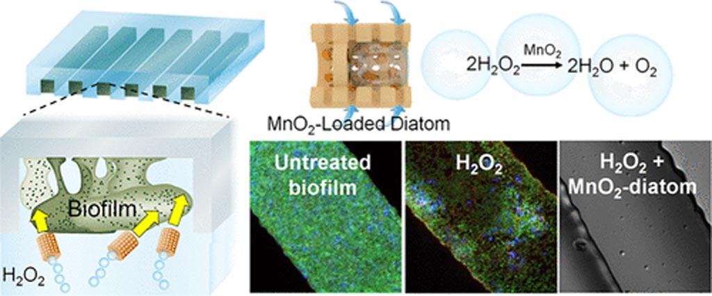 Движущиеся диатомеи H2O2 могут разрушать колонии биопленок (фото любезно предоставлено ACS).