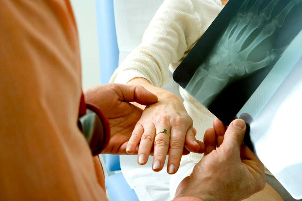 Технология искусственного интеллекта может помочь выявить переломы запястья (фото любезно предоставлено Getty Images).