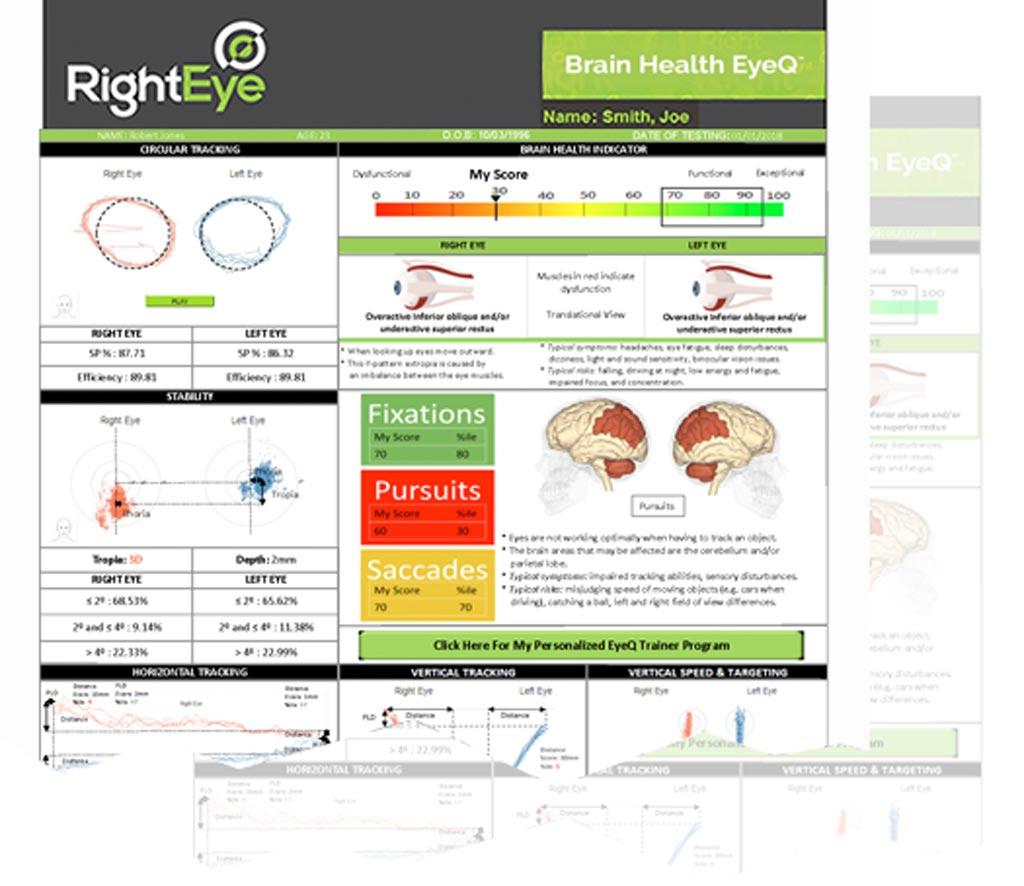 Отслеживание движения глаз может помочь обнаружить неврологические проблемы (фото любезно предоставлено RightEye).