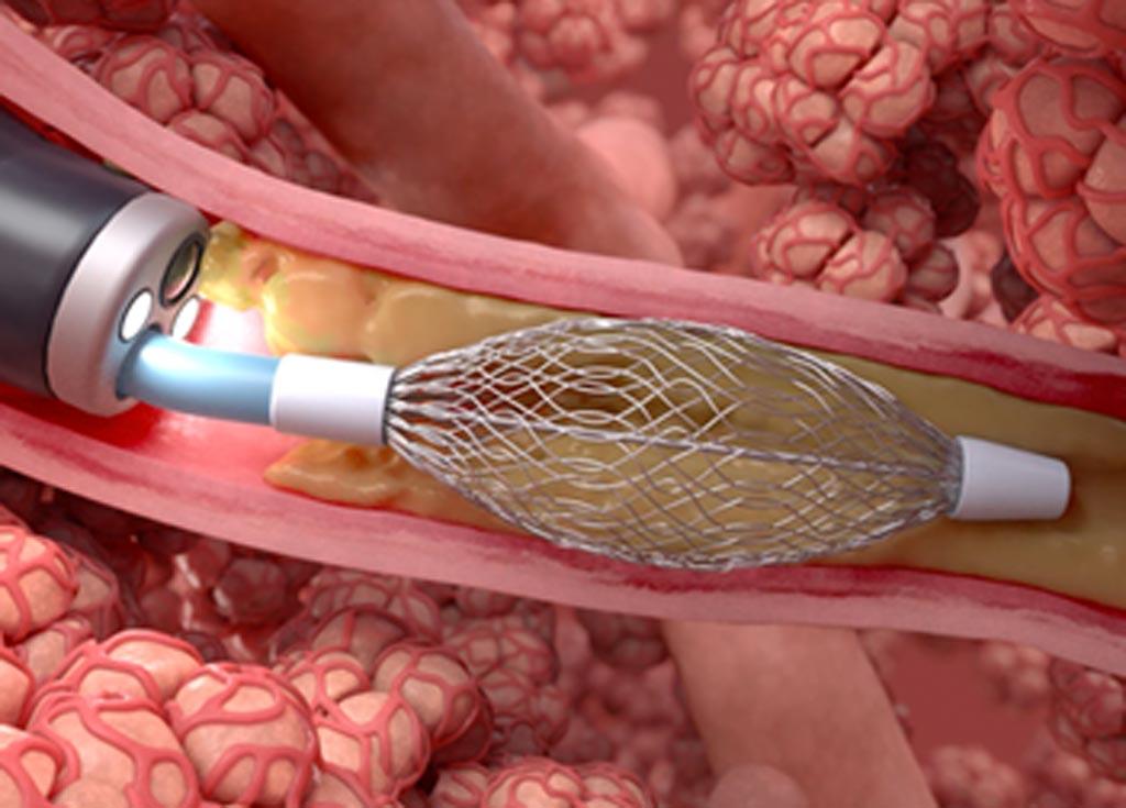 Электрохирургическая операция на легких может помочь в лечении хронического бронхита (фото любезно предоставлено Gala Therapeutics).