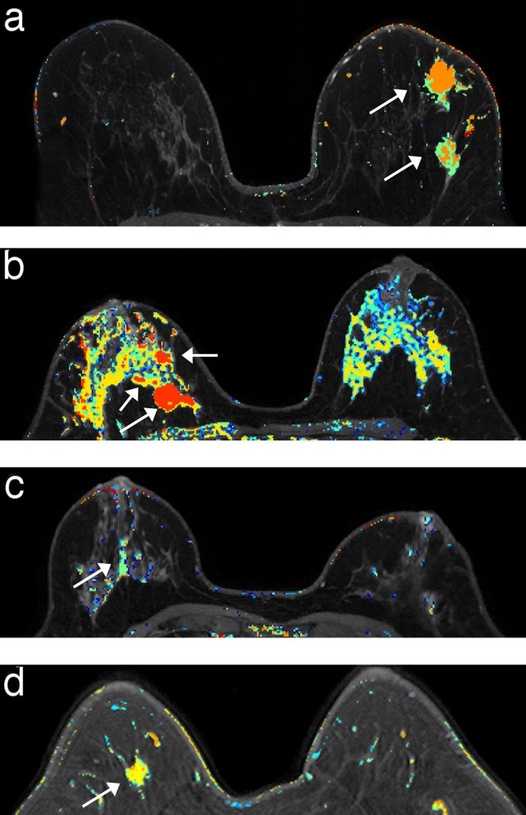 Прохождение DCE-МРТ каждые шесть месяцев поможет раньше выявить инвазивный рак молочной железы (фото любезно предоставлено Фредом Пинедой (Fred Pineda)/ UCM).