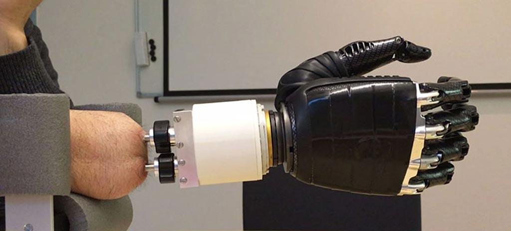 Искусственный запястный сустав действует как интерфейс между остеоинтегрированными имплантатами и протезной рукой (фото любезно предоставлено Технологическим университетом Чалмерса).