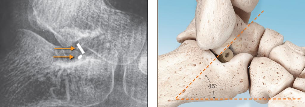 Имплантат подтаранного сустава PitStop сделан из ПЭЭК, что делает его более мягким, чем металлические имплантаты (фото любезно предоставлено I2Bones Global).