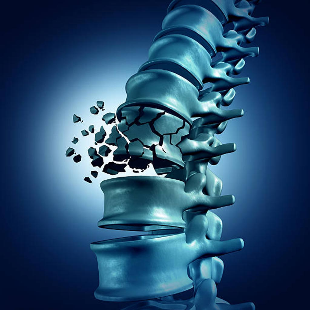 Новое исследование утверждает, что сращивание позвонков не облегчает болевые ощущения при переломах (фото любезно предоставлено iStock).