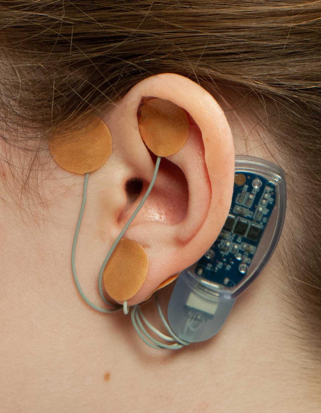 Новое чрескожное устройство предназначено для стимуляции черепных нервов с целью смягчения болевых ощущений при СРК (фото любезно предоставлено IHS).