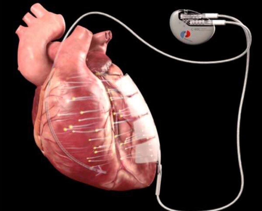Имплантированное устройство, предназначенное для стимуляции регенерации клеток при кардиомиопатии (фото любезно предоставлено Berlin Heals).