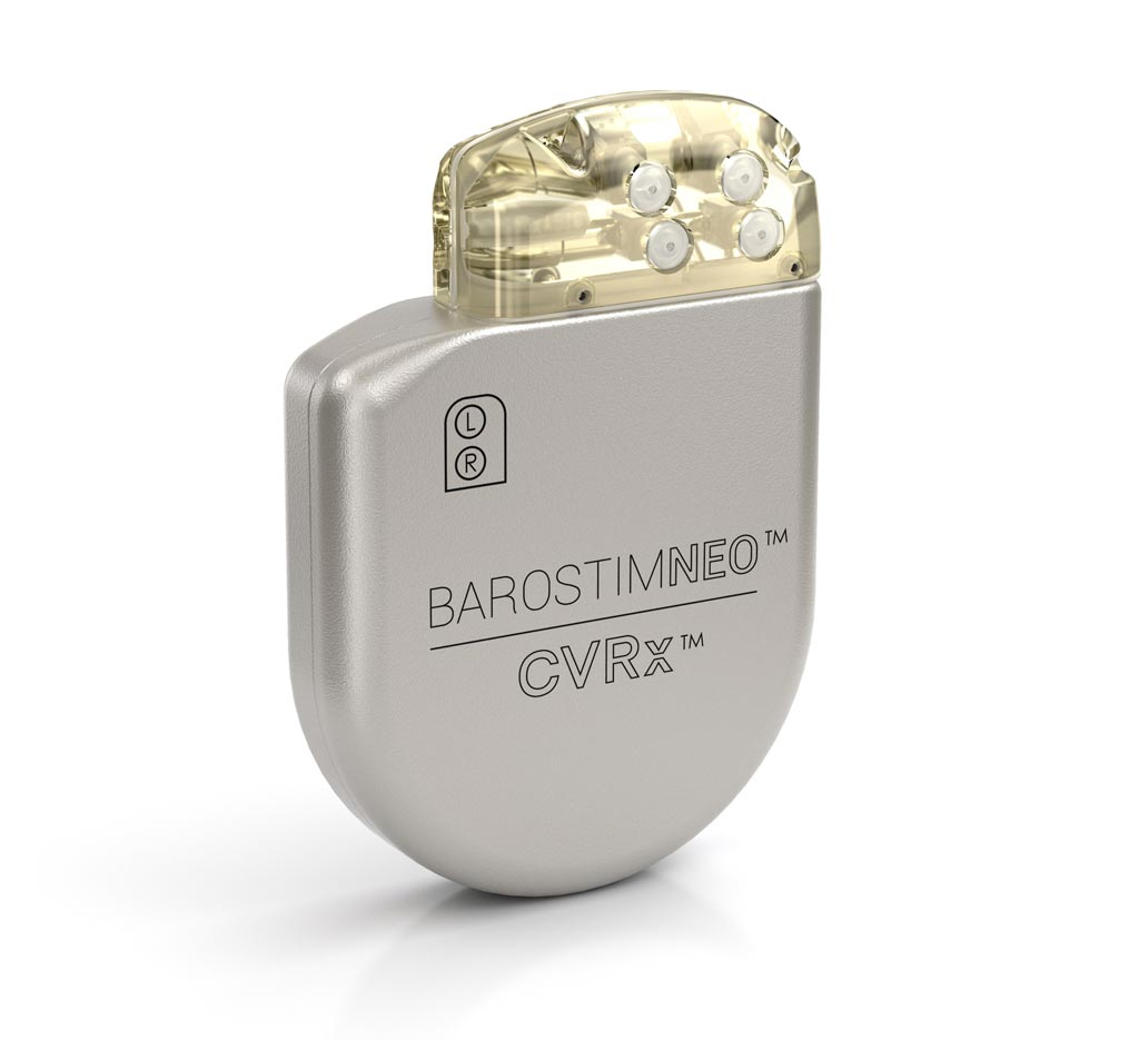 Система Barostim Neo System IPG (фото любезно предоставлено CVRx).