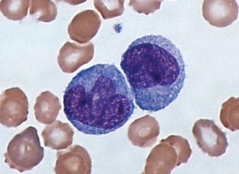 Мазок крови, окрашенный по Гимзе, демонстрирующий моноциты (фото любезно предоставлено доктором Грэмом Бирдсом (Graham Beards)).